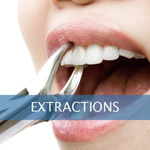 Tooth Extraction Framingham