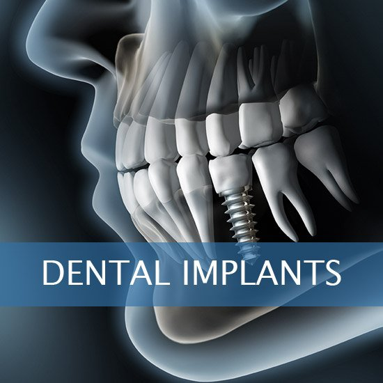 Dental Implants - Dentures - Exractions - Root Canals, Crown Lenghtening - Post Op Instructions - Framingham Dentists, Unique Dental of Framingham.
