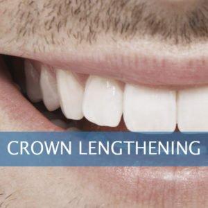 Crown Lengthening Framingham