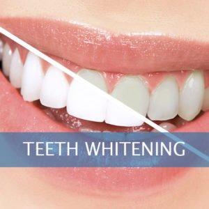 teeth whitening Framingham